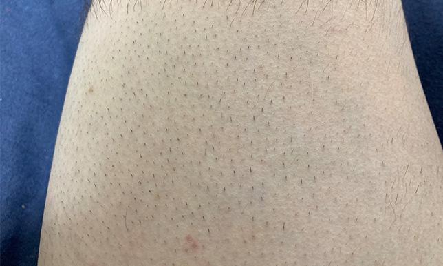 太もも5回目 剃る前の画像