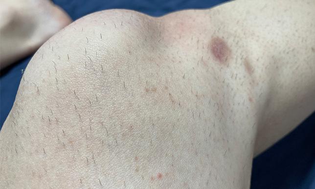 右ひざ 剃る前の画像